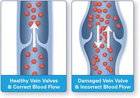 Healthy_vs_Diseased_Vein_Illustration